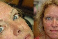 Lynne-collage1-e1470166977242