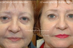 Wrinkle reduction, anti wrinkle, dry needling, needle wrinkles, Concord, NC. Charlotte, NC. Anti aging. Permanent makeup. Permanent eyebrows, permanent eyeliner, permanent lip color, 3d eyebrows, microblading. Medical tattooing. 3d areola nipple tattoo.