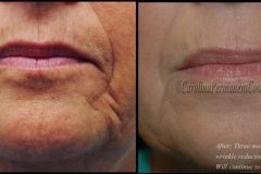 wrinkle-reduction-2-e1470167191911