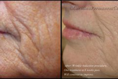 wrinkle-reduction-e1470167169890